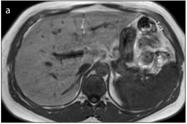 Hyperintensity at fat spared area in steatotic liver on the hepatobiliary phase MRI